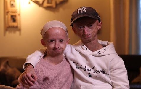 """20岁的""""老人"""" ! 比利时兄妹患早衰症衰老速度比常人快5倍"""