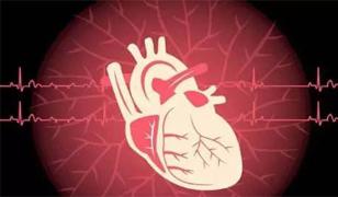 心梗,要命的心血管病