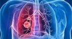 这些新冠肺炎说法勿传勿信